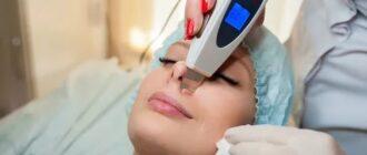 Косметологический УЗ аппарат – лучше решения для борьбы с морщинами